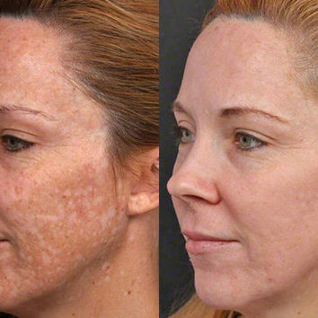EXTREME Skin Bleaching Cream FAST RESULTS