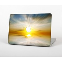 """The Bright Blurred Sunset Skin Set for the Apple MacBook Pro 13"""""""