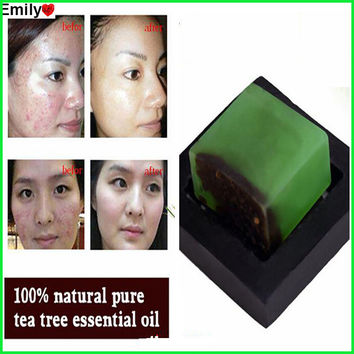 Powerful Acne Remover! 100% Pure Tea Tree Essential Oil Soap Acne Treatment And Remove Whelk Shrink Pore Face Care Facial Soap