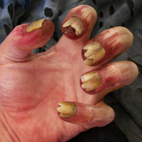 Rotten Zombie Nails