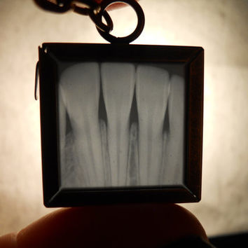 Nibbler Real Human Tooth X-Ray Horror Necklace