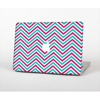 """The Blue & Pink Sharp Chevron Pattern Skin Set for the Apple MacBook Air 11"""""""