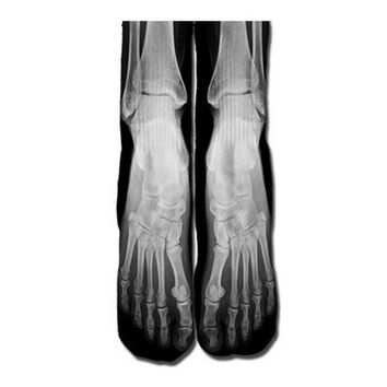 X Ray Socks