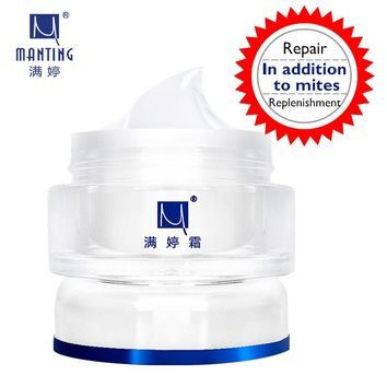 Hot! Free shipping ManTing cream Mite bug busters face care acne treatment scars remover cream 30g removing blain accusing oil