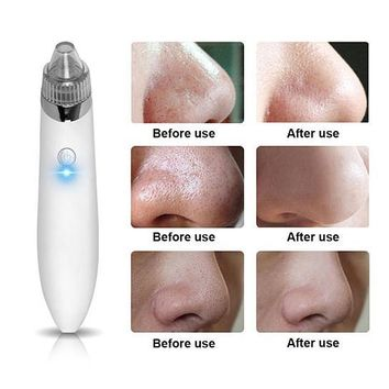 Electronic Acne, Blackhead Vacuum Extraction Removal Device
