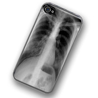 iPhone Case XRay Hard Case / Fits Iphone 4 4S by TheCuriousCaseLLC