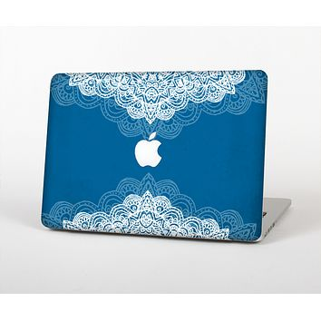 The Intricate Blue & White Snowflake Name Script Skin Set for the Apple MacBook Air 11""