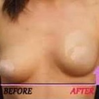 Amazon.com: Cleavage Enhancers / Breast Shapers By Cheeky- 6 Pairs, BEST VALUE!!!: Health & Personal Care
