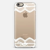 Double White Romantic Lace iPhone 6 case by Organic Saturation | Casetify