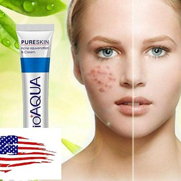 Acne Spots, Scar, Blemish Marks, Removal Cream