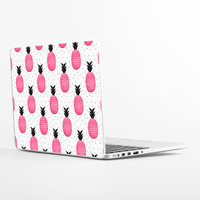 Pink Pineapple Laptop Skin