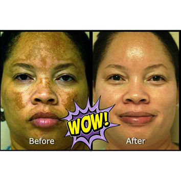 7 DAY RESULTS Acne Scar & Spot Removal Cream 30% STRONGER