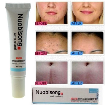 NUOBISONG Face Treatment Gel Acne Scar Blemish Removal Stretch Marks Cream [8833484044]