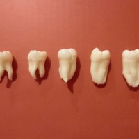 Lot of 5 Natural Human Real Teeth Dental School For Study Root Canal Practice