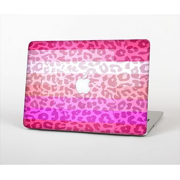 The Hot Pink Striped Cheetah Print Skin Set for the Apple MacBook Pro 15""