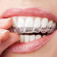 Thermoform Moldable Mouth Teeth Dental Trays Tooth Whitening Guard Whitener