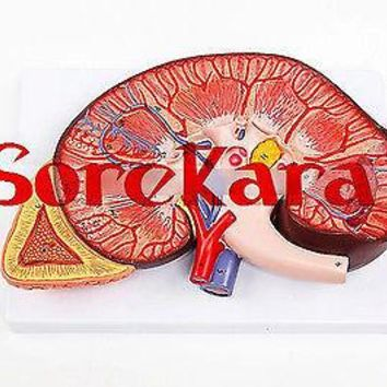3:1 Human Anatomical Kidney Structure Dissection Organ Medical Teach Model School Hospital Hi-Q