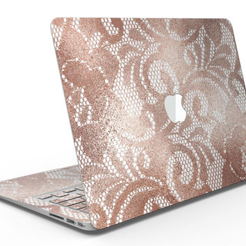 Rose Gold Lace Pattern 14 - MacBook Air Skin Kit