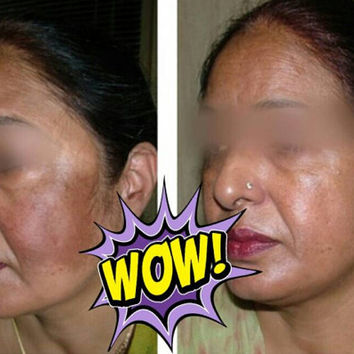 5 Day Results Skin Bleaching Scar Removal Cream